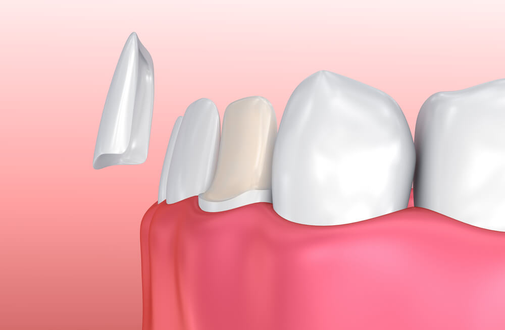 CGI image illustrating how application of porcelain veneers works. A white, thin porcelain shell is being placed over a discolored tooth.